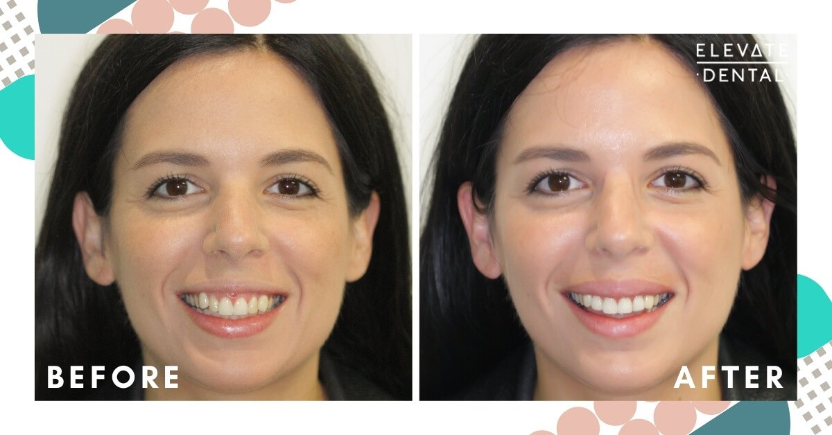 Jemma-Elevate-Dental-Composite-Veneers