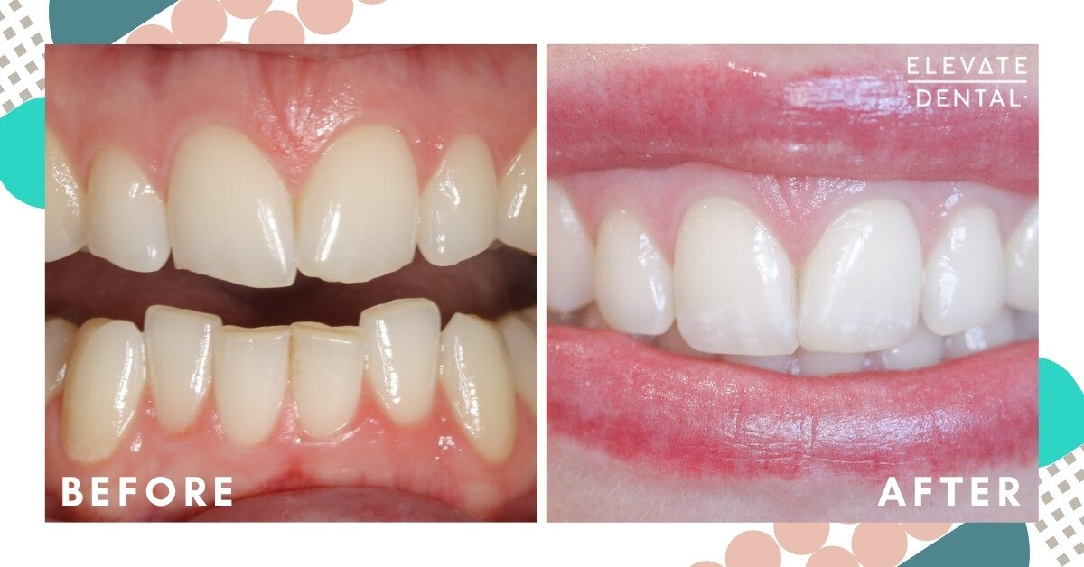 Kate-Elevate-Dental-Composite-Bonding