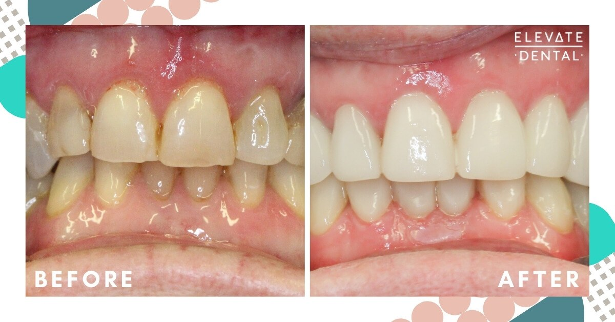 Linda-Elevate-Dental-Veneers