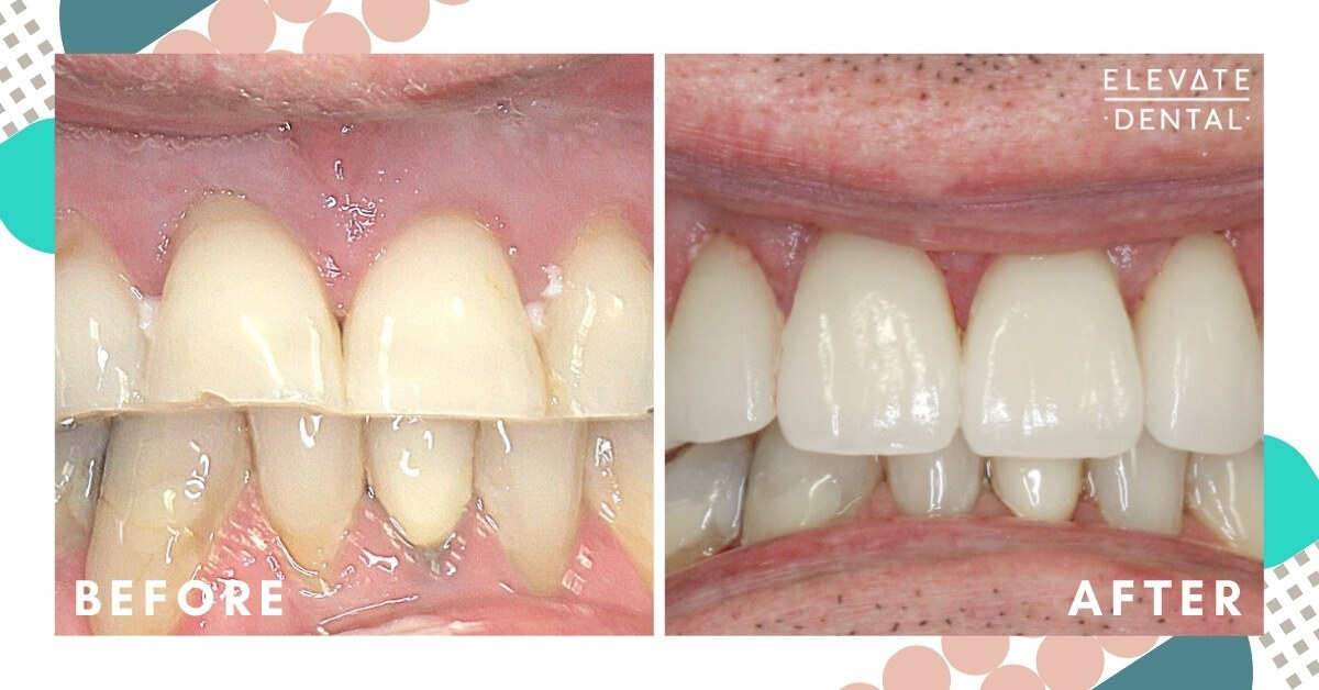 Mark-Elevate-Dental-Whitening-Crown