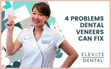 4 Problems Dental Veneers Can Fix