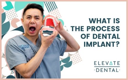 What Is the Process of Dental Implant?