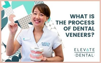 What Is The Process Of Dental Veneers?