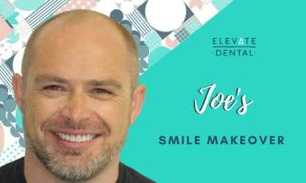 Joe's Smile Makeover