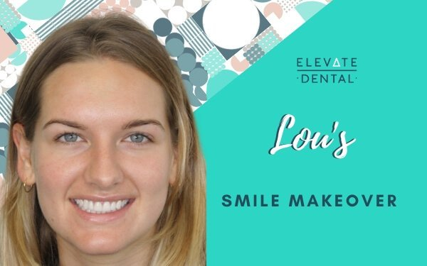 Lou's Smile Makeover