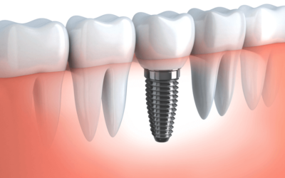 What Is Guided Implant Surgery? And Why Is It Better?