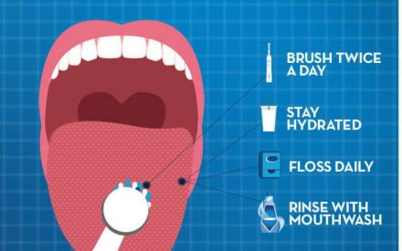 How to Prevent and Cure Bad Breath?