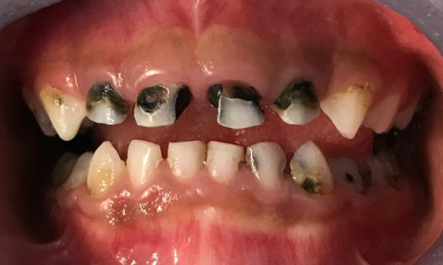 Tooth Decay: Babies, Children and Teenagers