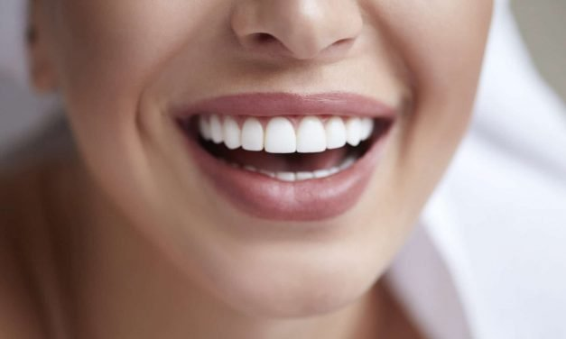 6 Simple Tricks to Keep Your Smile White and Healthy