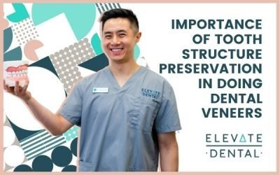 Importance of Tooth Structure Preservation in Doing Dental Veneers