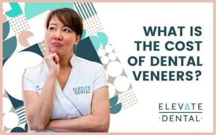 What Is The Cost Of Dental Veneers?