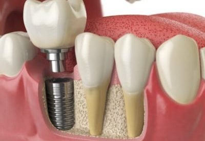 5 Signs Your Patient Might Need Dental Implants