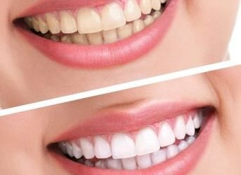 Is it Safe to Use Hydrogen Peroxide to Whiten Teeth?