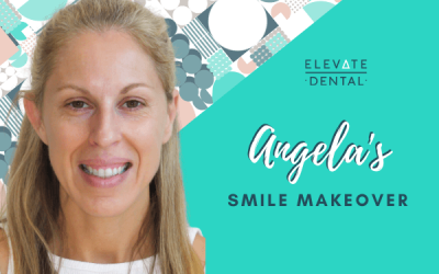 Angela's Smile Makeover in Richmond
