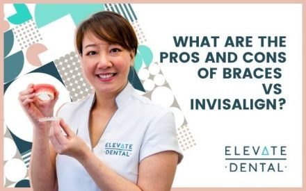 What Are the Pros and Cons of Braces Vs Invisalign?