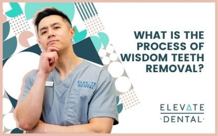 What Is the Process of Wisdom Teeth Removal?