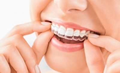 What to Know About Invisalign and Its Effectiveness