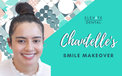 Chantelle's Smile Makeover in Richmond