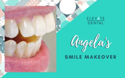 Angela's Smile Makeover in Hawthorn