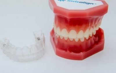 How Long Does Invisalign Take to Work?