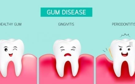 What Are The Stages Of Gum Disease?