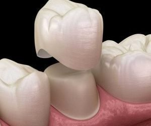 Everything You Need to Know About Getting a Dental Crown