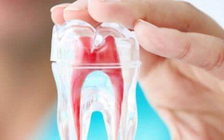 What is the Use of Sedation for Root Canal Therapy?